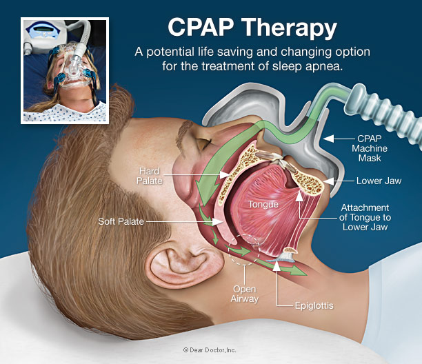 cpap-therapy