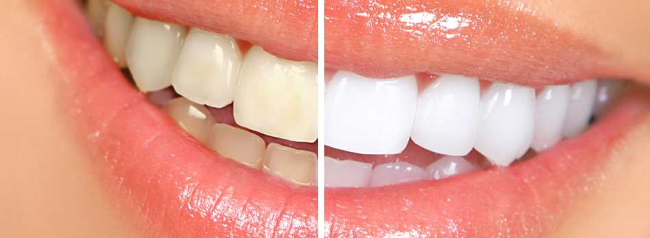 In Office Tooth Whitening For Sensitive Teeth Aesthetic Family