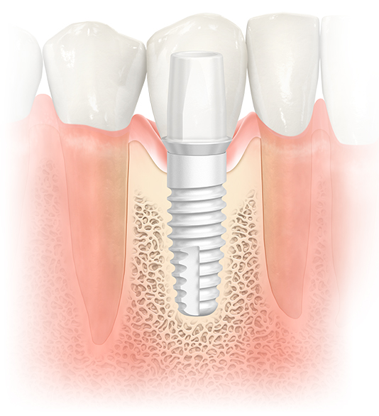NobelPearl™ Dental Implants in NJ