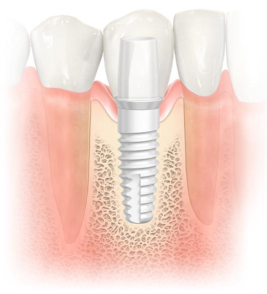 NobelPearl™ Dental Implants in NJ